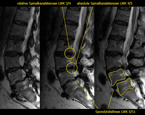 absolute spinalkanalstenose hws symptome